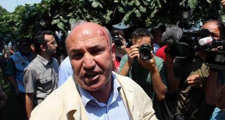 Zabıtalar CHP milletvekilinin kafasını kırdı