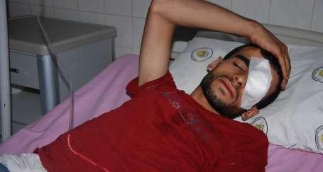 Gaz bombasıyla sol gözünü yitiren Caruş taburcu edildi