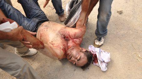 Otopsi raporu: Ayhan ateşli silahla öldürüldü