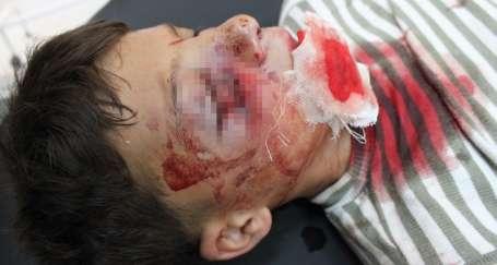 Polis gaz bombalarıyla çocukları vuruyor