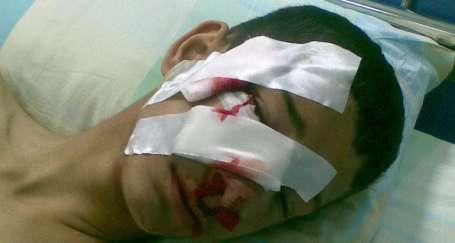 Polisin gaz bombası çocuğu yaraladı