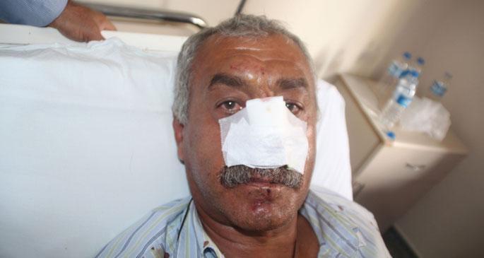 Demirtaş'ın aracına saldırda EMEP yöneticisinin burnu kırıldı