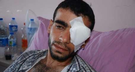Polisin attığı gaz Hüseyin'in sol gözünü aldı