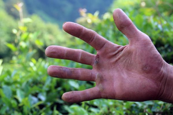 Nasırlı işçi eli