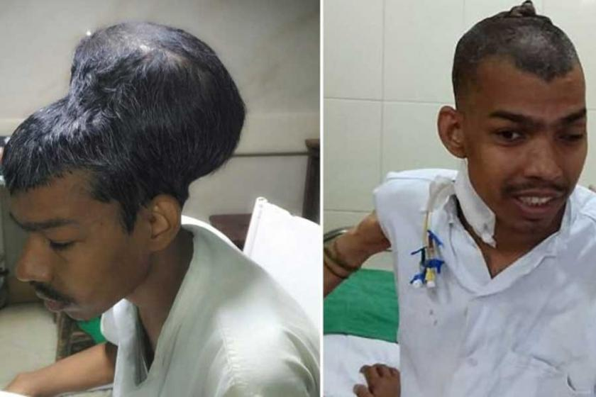 Hintli doktorlar dünyanın en büyük beyin tümörünü aldı