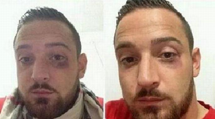 Dersimli futbolcu Deniz Naki'ye saldırı