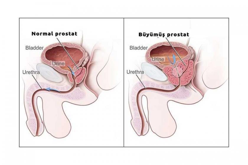 prostat kanseri belirtileri sebepleri