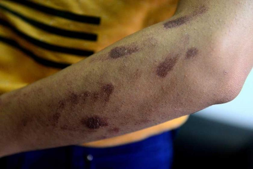 Lazer epilasyonda vücudunda yanıklar oluştu, dava açtı