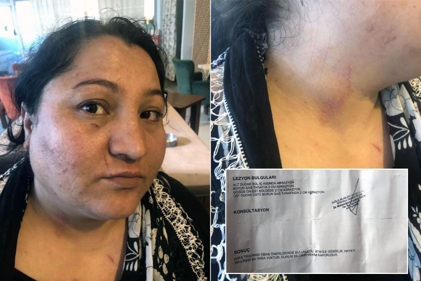 Sigortasız çalıştırılan kadın işçi işyerinde şiddete uğradı