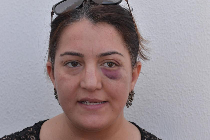 Adana'da yaralıya müdahale eden hemşire ve sağlık görevlisini darbettiler