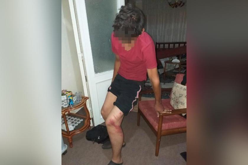 Konya'da oto tamircide çalıştırılan çocuk, dükkan sahibinin şiddetine maruz kaldı
