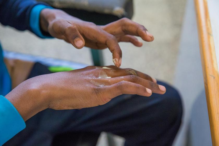 Uyuz hastalığına yakalanmış bir kişi eline krem sürerken