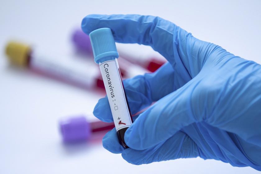Koronavirüs (2019-nCoV) test tüpleri, İllüstrasyon