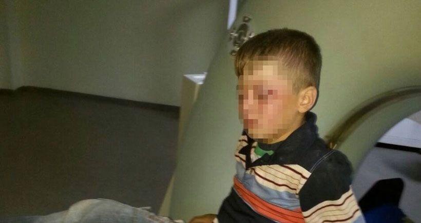 Polisin vurduğu 8 yaşındaki çocuğun tedavisi sürüyor