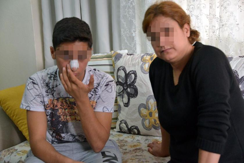 Kızıyla sohbet etti diye ortaokul öğrencisinin burnunu kırdı