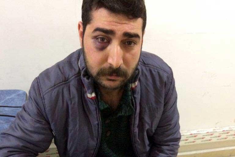 Gazeteciye işkencenin fotoğrafı