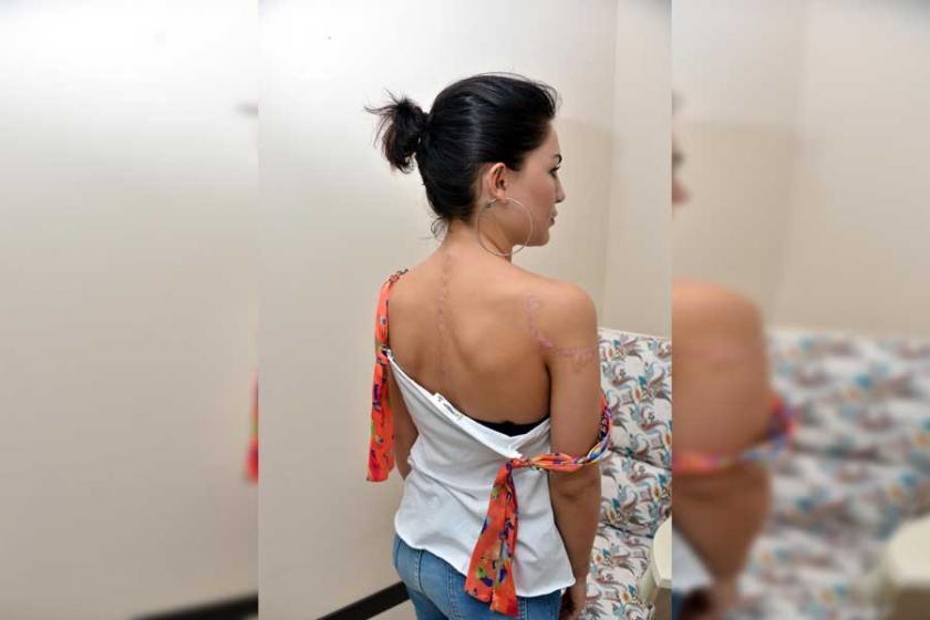 Yanlış dövme silme ameliyatı kadının vücudunda iz bıraktı