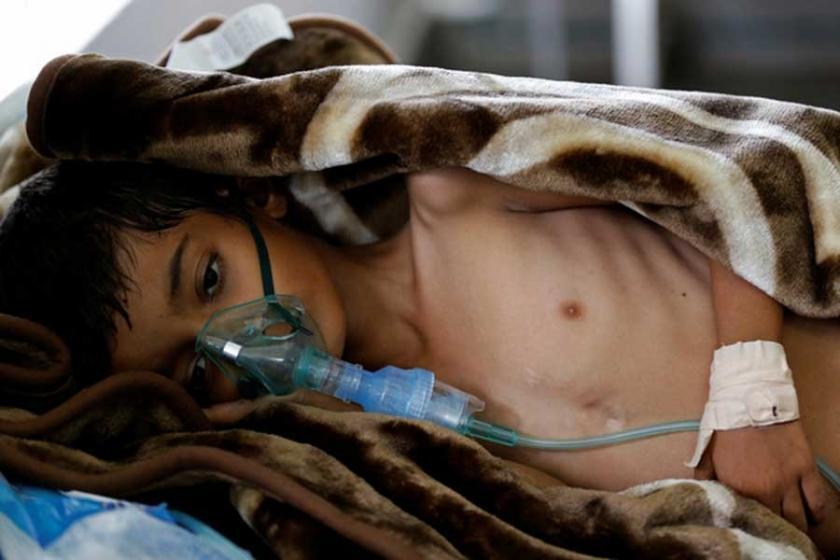 BM: Yemen yardım almazsa görülmemiş bir açlık yaşayacak