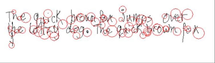 Disleksi olan 10 yaşında bir çocuk: Yazım hataları nedeniyle kelimeler içinde duraklamalar ortaya çıkar.