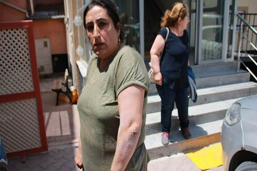 Broşür dağıtan CHP Kadın Kolları Başkanı'na saldırı