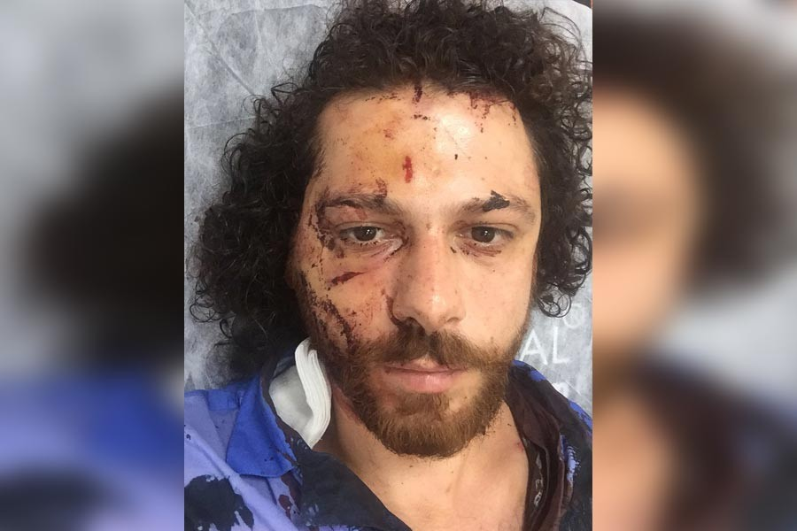Oyuncu Oral Özer, Kadıköy'de barda darbedildi; mücadeleye çağırdı
