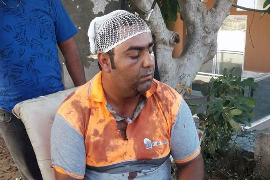Belediyede çalışan Roman temizlik işçisi: Zabıta amiri beni darbetti