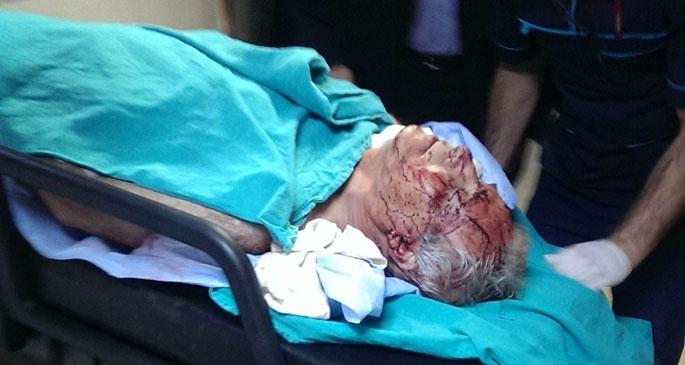 HDP PM üyesi 3 yerinden bıçaklandı