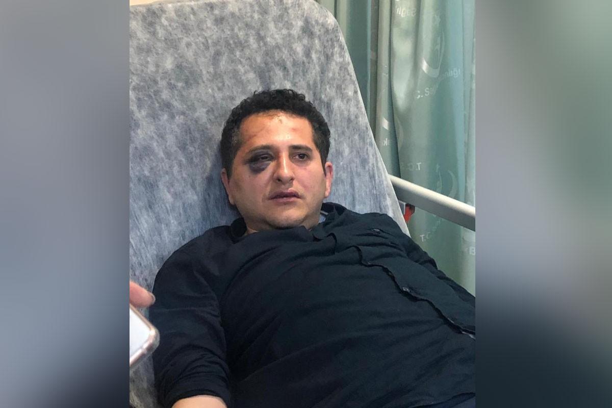 Erdoğan'ın korumalarının dövdüğü avukata, 'hakaret' davası açılmayacak