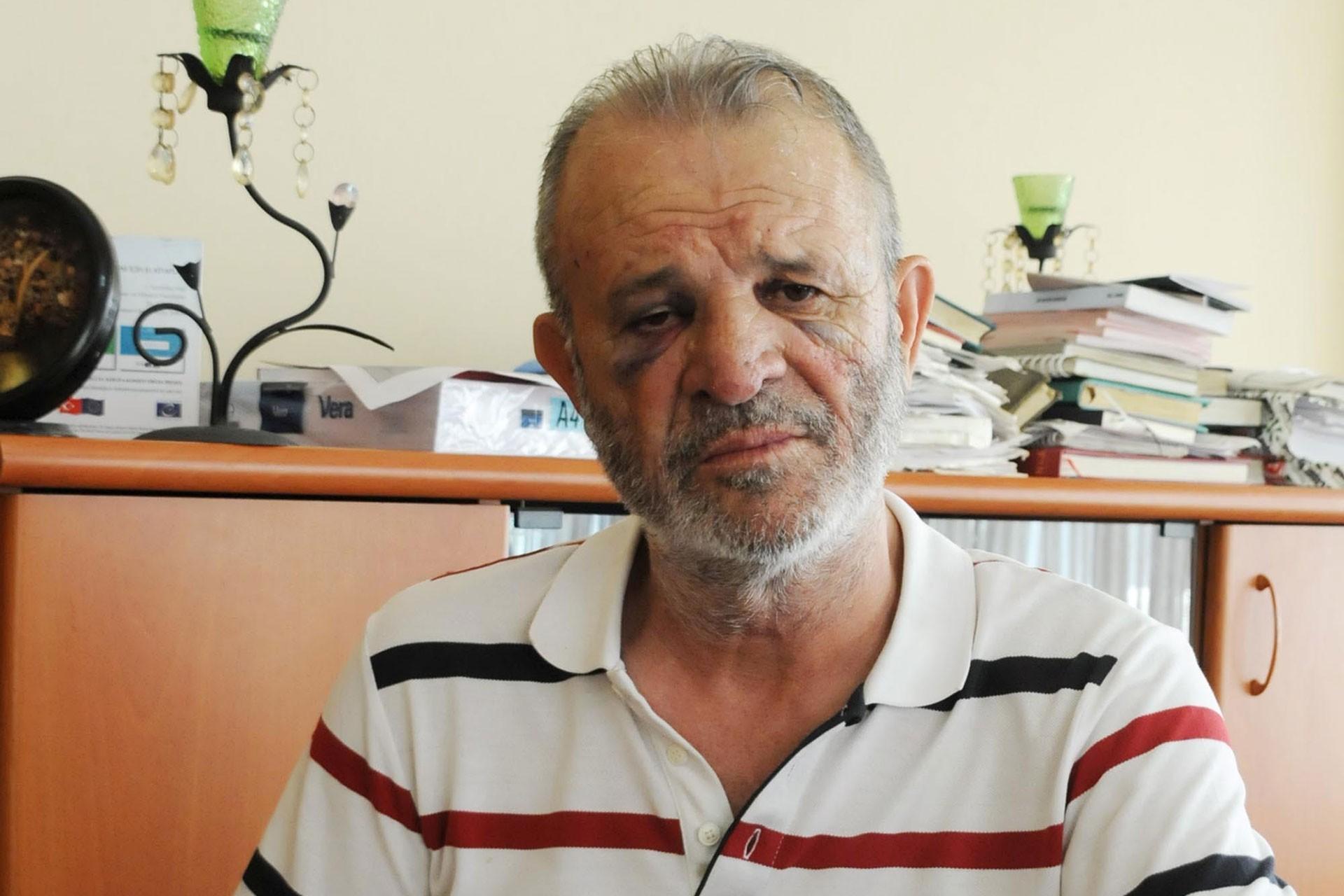 Yalova'da avukatı darbeden kişi serbest bırakıldı