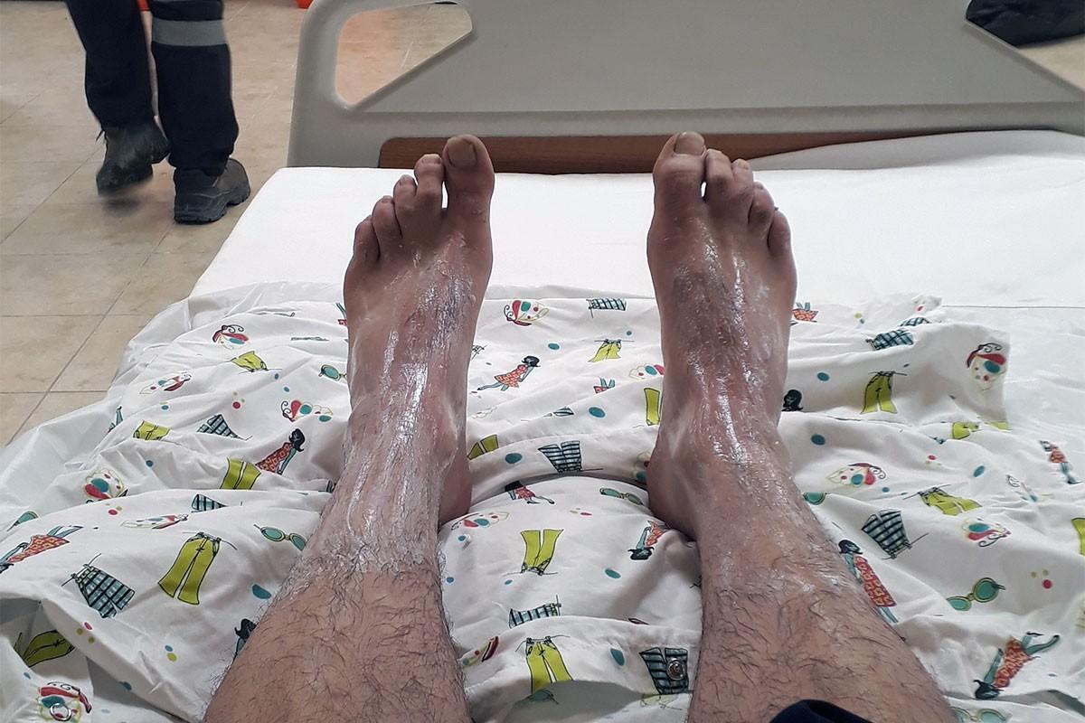 Ayağına sülfürik asit dökülen işçi kaderine terk edildi