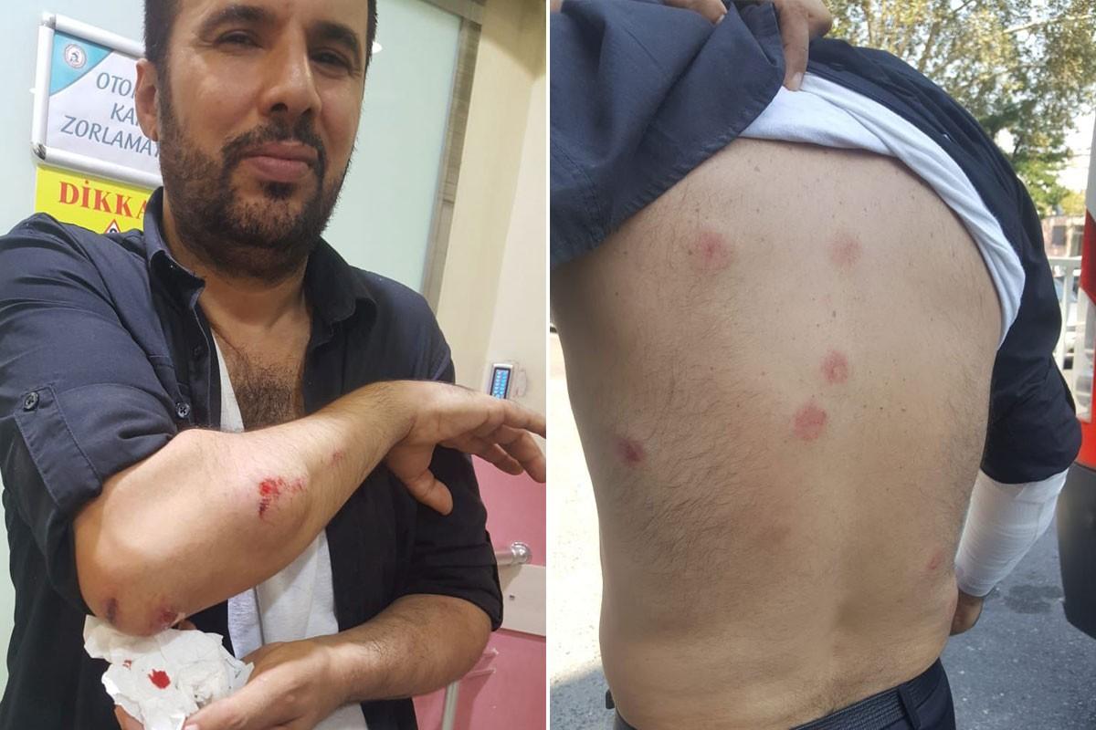 Polis saldırısına maruz kalan Aydın Aydoğan AYM'ye başvurdu