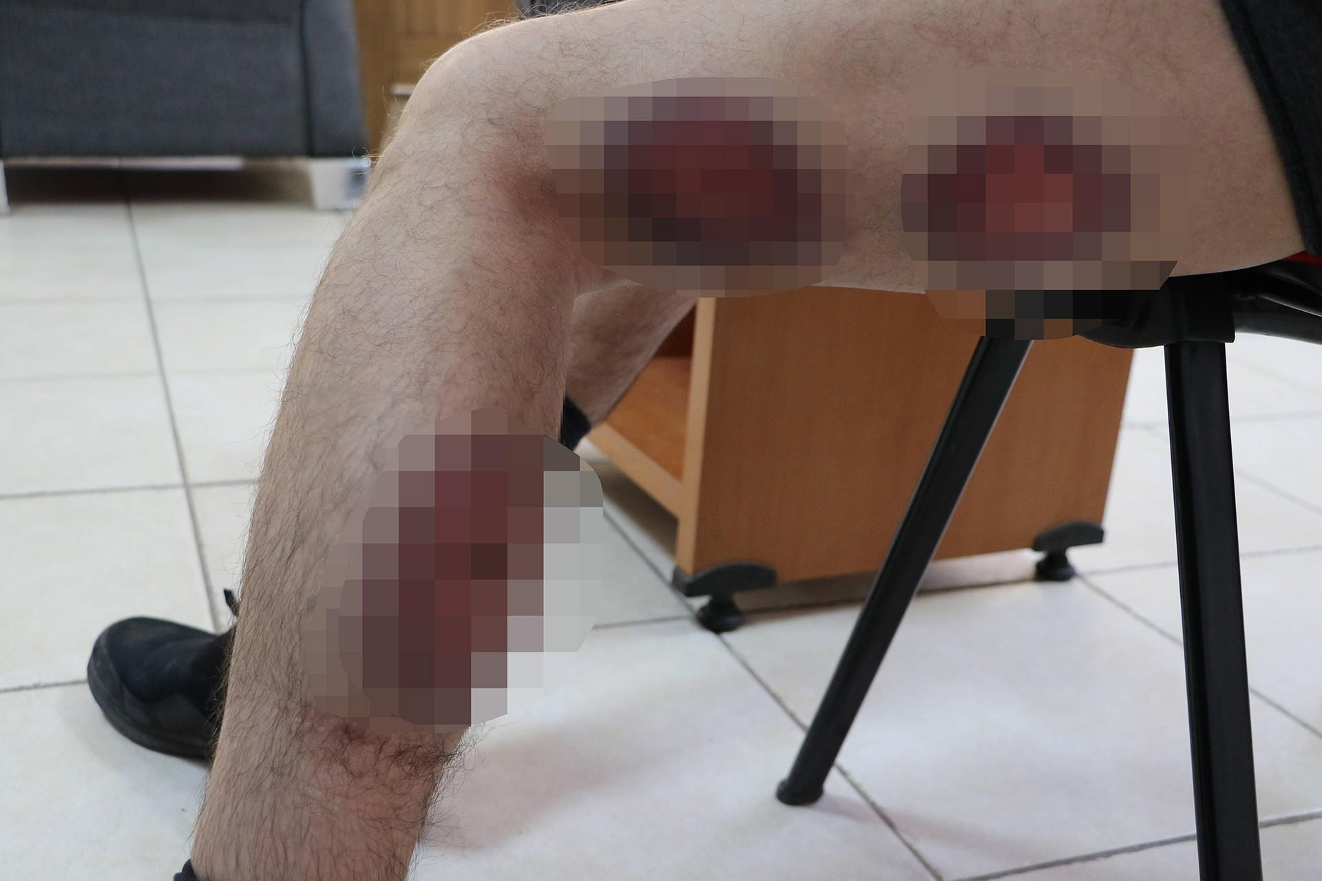 Polisin sıktığı plastik mermi sonucunda bacaklarında ödem oluştu