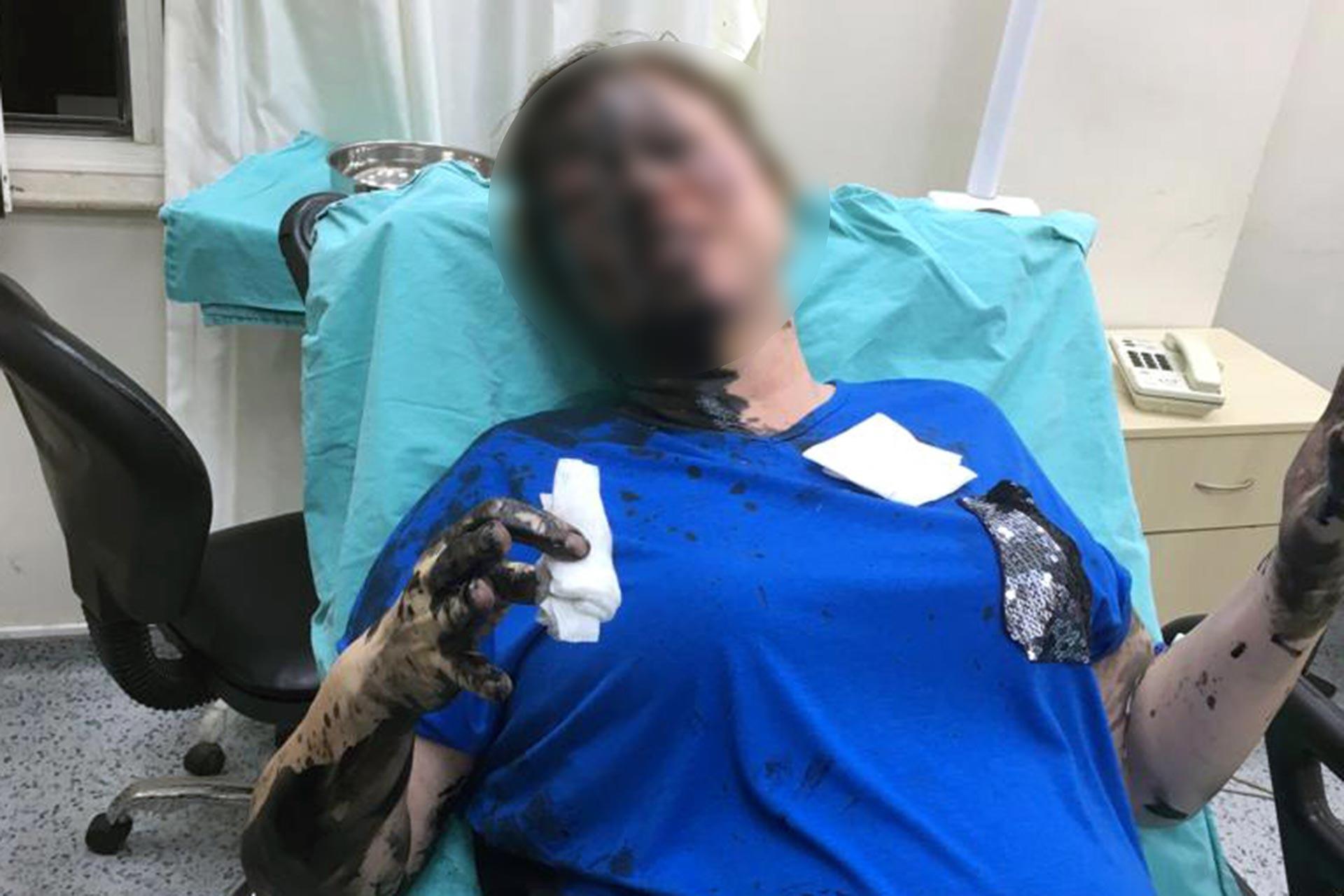 Adana'da bir kadını darbedip yakmakla tehdit eden iki kişi cezasızlığa güvenmiş