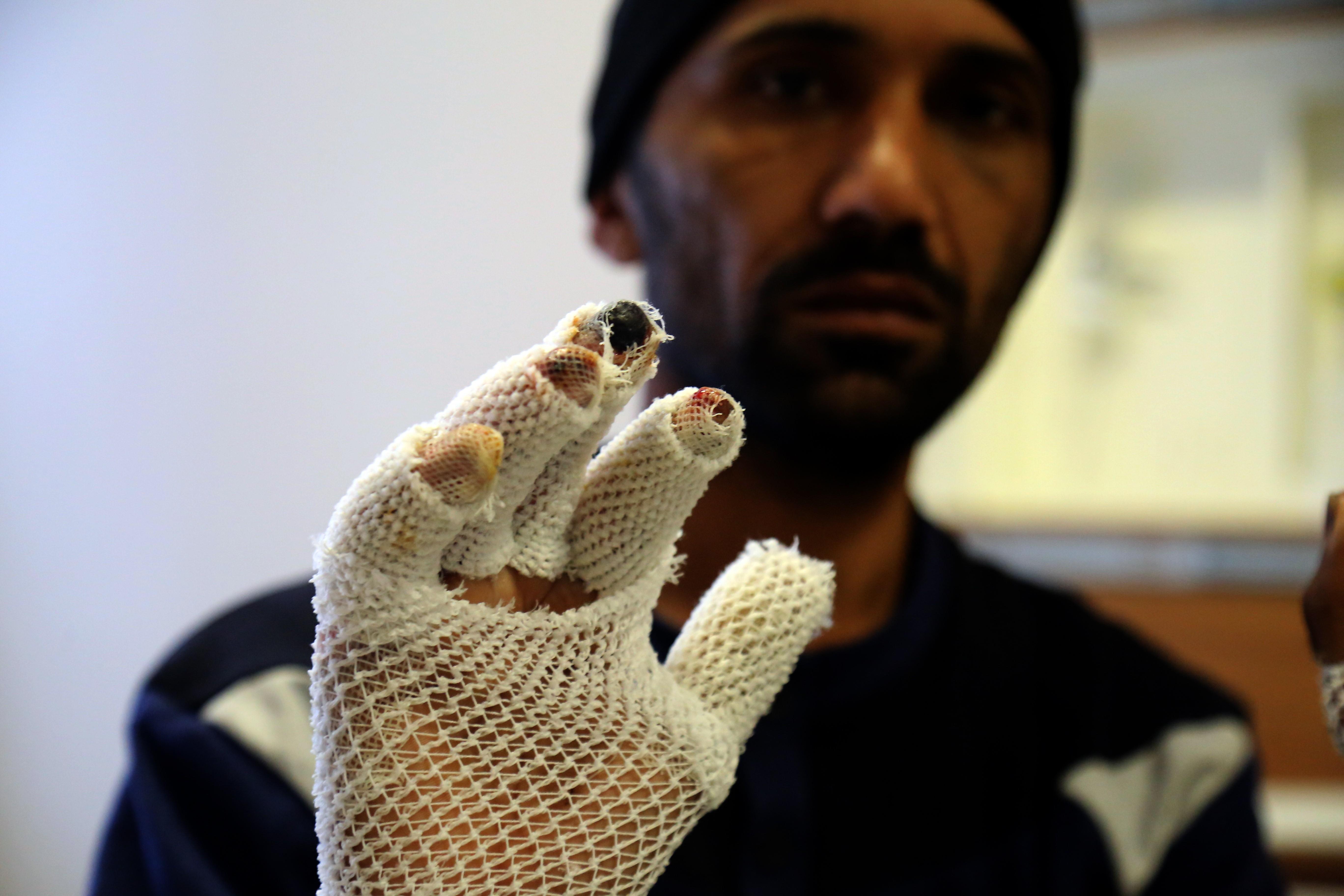 Sınırdan geçerken soğuktan el ve ayak parmakları donan mülteciler