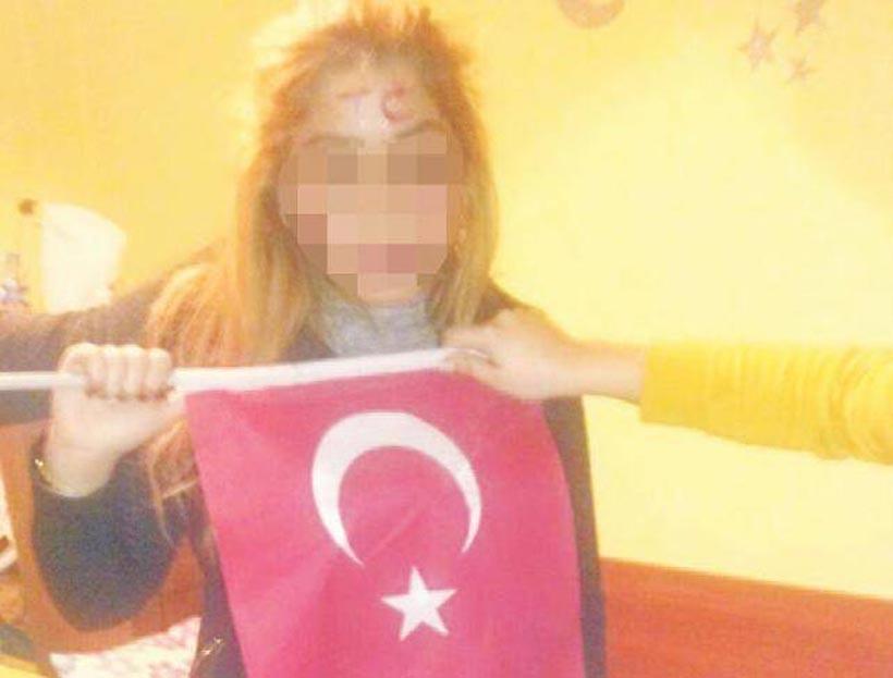 Kürt öğrencinin alnına rujla T.C. yazıp fotoğrafını paylaştılar
