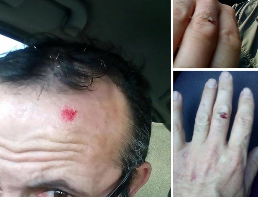 Müvekkilini görmeye giden avukatın parmaklarını kırdılar