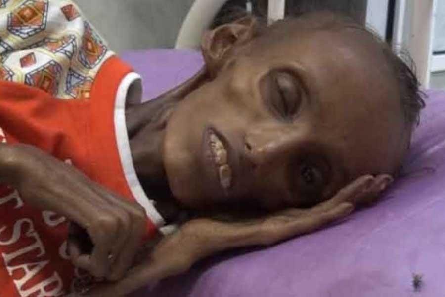 'Yemen'de durum korkunç'