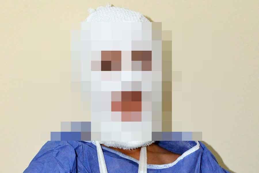Çöpe atılan parfüm patladı, 11 yaşındaki çocuğun yüzü yandı