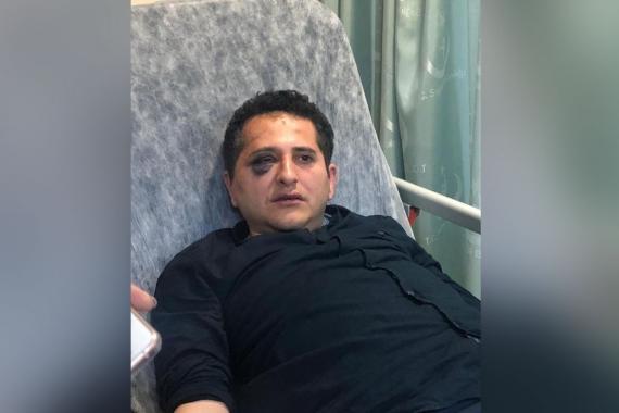 Avukat Sürenoğlu'nu darbeden polisler soruşturulmayacak: Orantılı güç kullanıldı