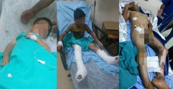 Lice'de askerlerin bıraktığı cisim alev aldı: 3 çocuk yaralı