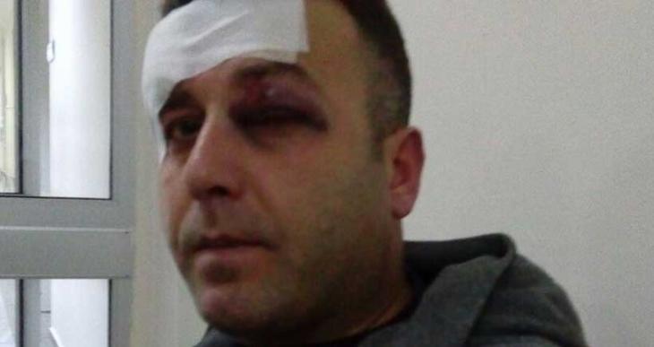 Cizre eylemine polis saldırısında bir kişi gözünden yaralandı