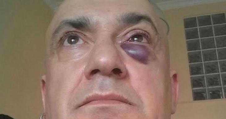 Kocaeli Eğlence Yerleri Derneği Başkanı Yusuf Ziya Tom saldırıya uğradı