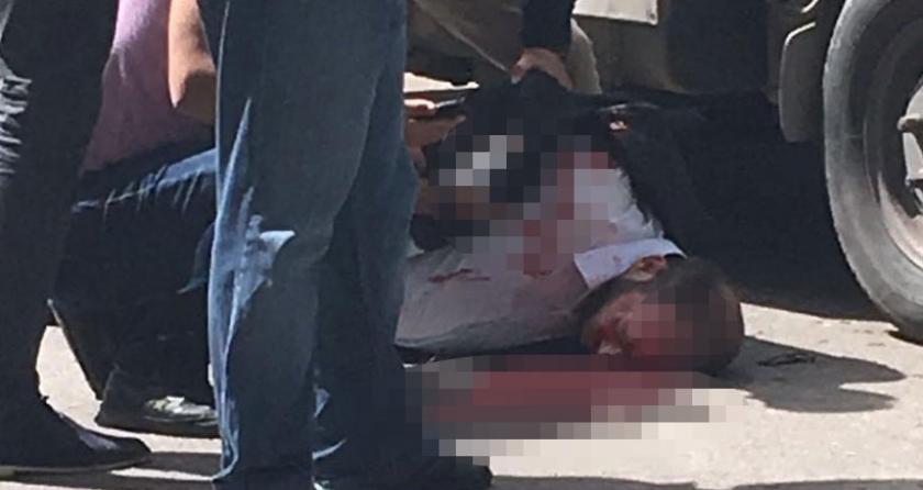 Gaziantep'te ensesinden vurulan Suriyeli gazeteci ağır yaralı