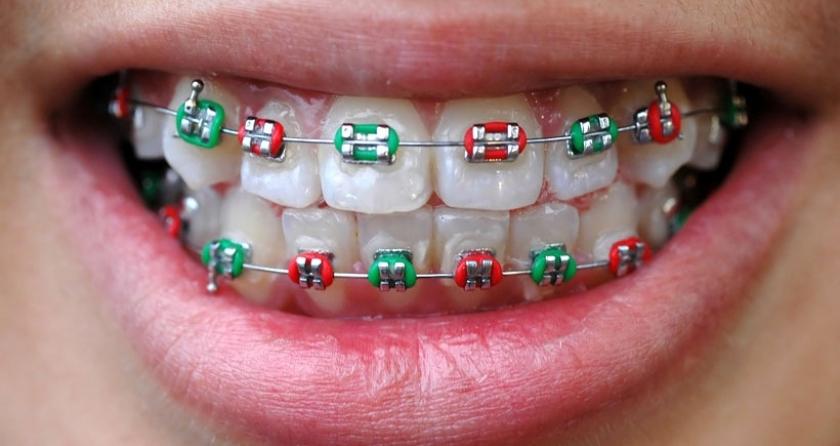Diş teli (ortodontik tedavi) hakkında doğru sanılan 5 yanlış