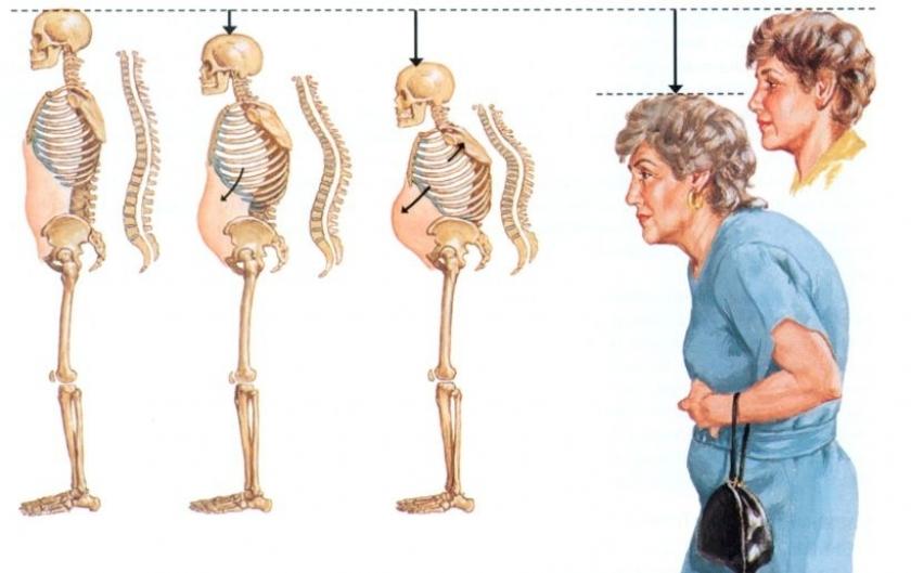 erken yaşta beli ağrıyanlar ankilozan spondilit olabilir evrensel net