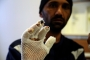 Van'ın hastanelerinde mülteci gerçeği: Soğuktan donan el ve ayak parmakları kesilecek