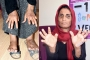 Kadına şiddet: Eşi elektrik verdi, 11 parmağı kesildi